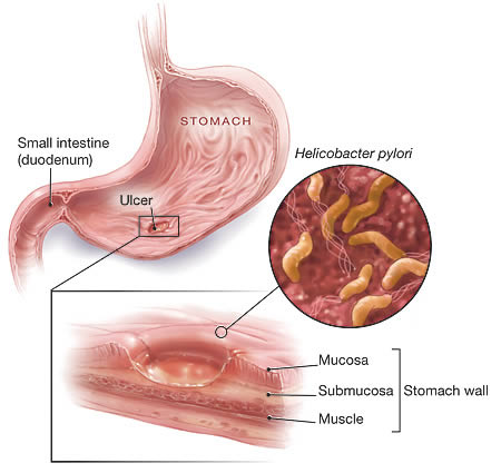 Helicobacter pylori in stomach