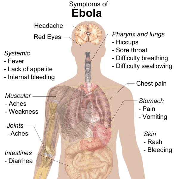 Signs and Symptoms of Ebola Virus Disease