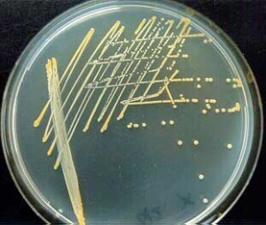Nutrient Agar: Composition, Preparation and Uses