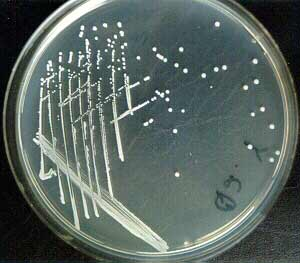 Staphylococcus epidermidis in nutrient agar.
