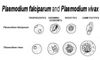 Differences Between Plasmodium falciparum and Plasmodium vivax