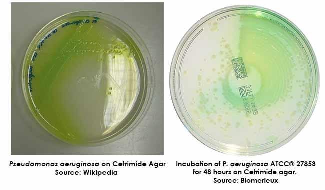 Colony Morphology on Cetrimide Agar