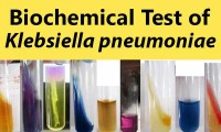 Biochemical Test and Identification of Klebsiella pneumoniae