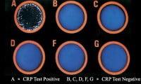 Result Interpretation of CRP Test