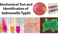 Biochemical Test and Identification of Salmonella Typhi