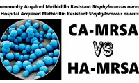 Community Acquired MRSA vs Hospital Acquired MRSA