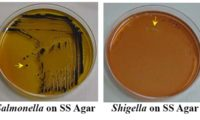 Result Interpretation on Salmonella Shigella Agar