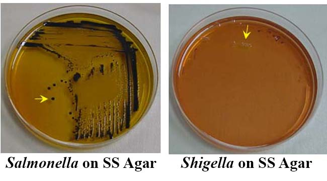 Result Interpretation on Salmonella Shigella Agar