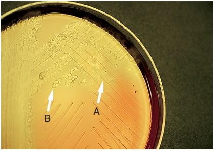 Result Interpretation of Bile Solubility Test Plate Method 1