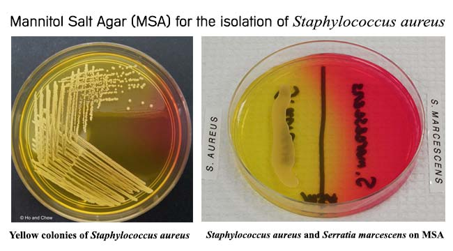 Mannitol Salt Agar for the isolation of Staphylococcus aureus