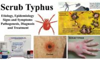 Scrub Typhus- Etiology, Epidemiology, Symptoms, Pathogenesis, Diagnosis and Treatment