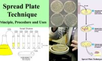 Spread Plate Technique- Principle, Procedure and Uses