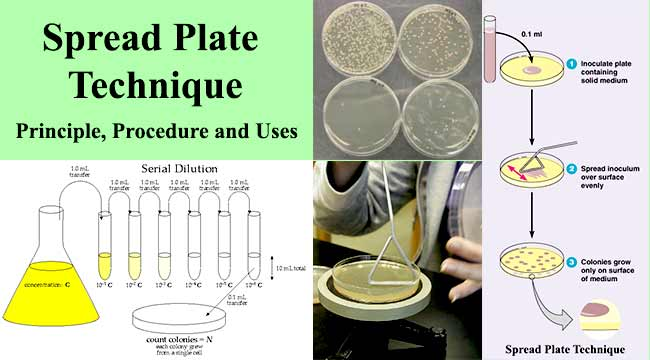 Spread Plate Technique- Principle, Procedure and Uses
