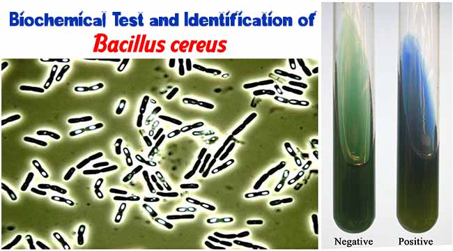Biochemical Test and Identification of Bacillus cereus
