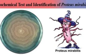 Biochemical Test and Identification of Proteus mirabilis
